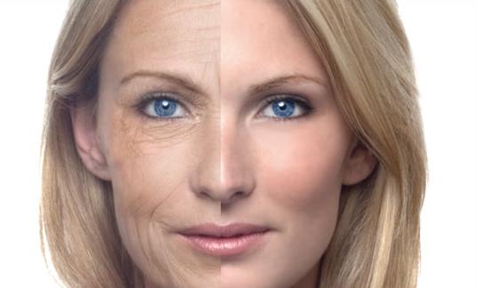 Ways to get rid of wrinkles