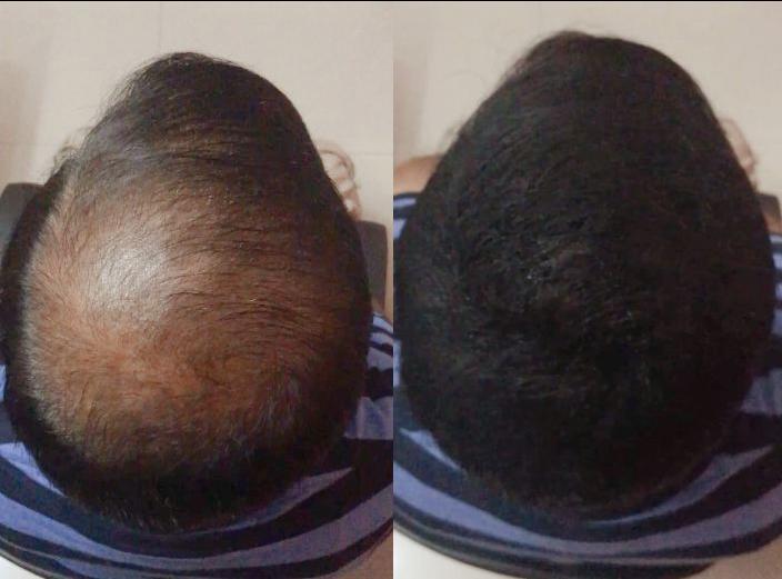 Million Hair blog